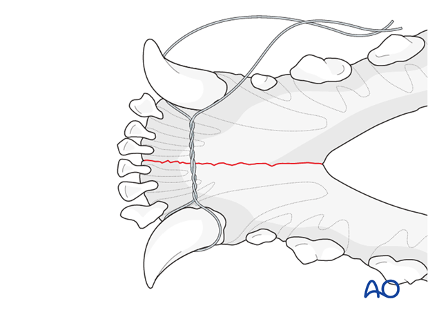 Dog mandible symphyseal separation interdental wire positioning