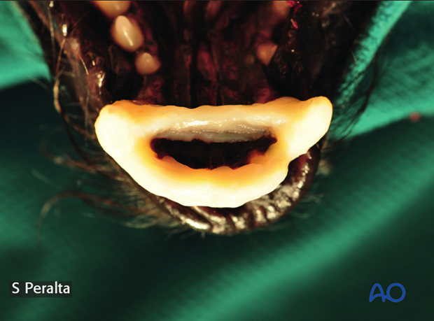 Dog mandible symphyseal separation composite application intraoperative picture example