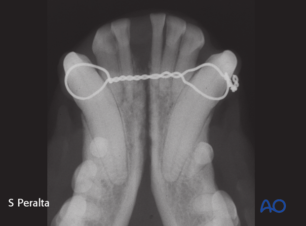 Postoperative imaging of interdental wiring repair of a symphyseal separation in a dog.