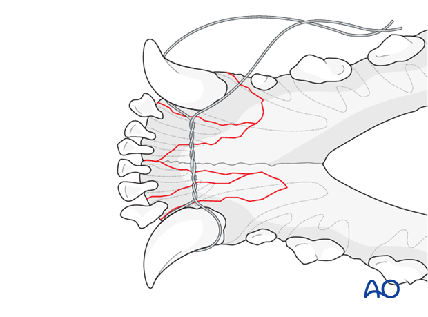 Dog mandible parasymphyseal comminuted fracture interdental wire positioning