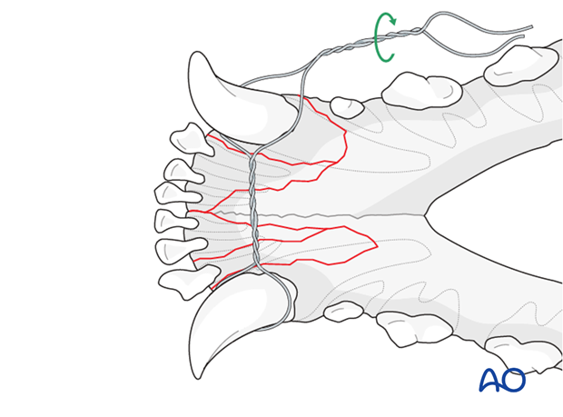 Dog mandible parasymphyseal comminuted fracture interdental wire tightening