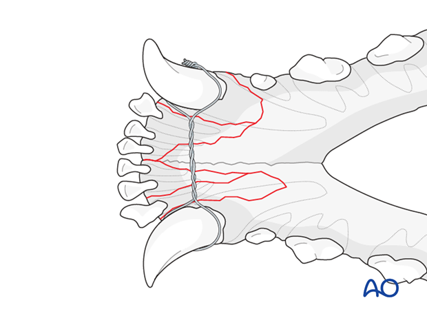 Dog mandible parasymphyseal comminuted fracture interdental wire closure