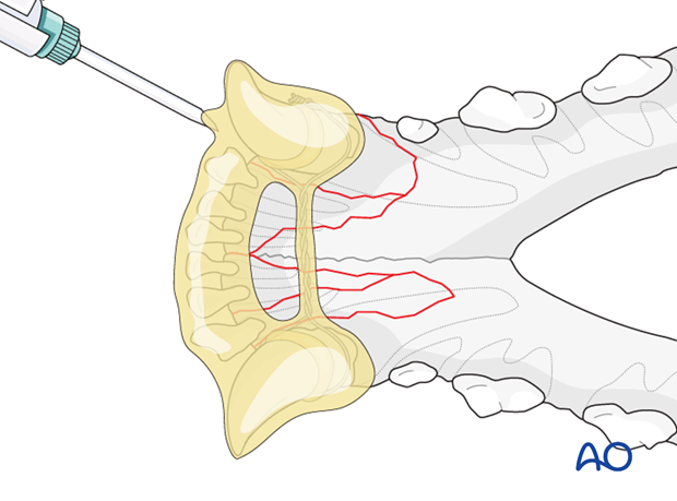 Dog mandible parasymphyseal comminuted fracture interdental wiring composite placement