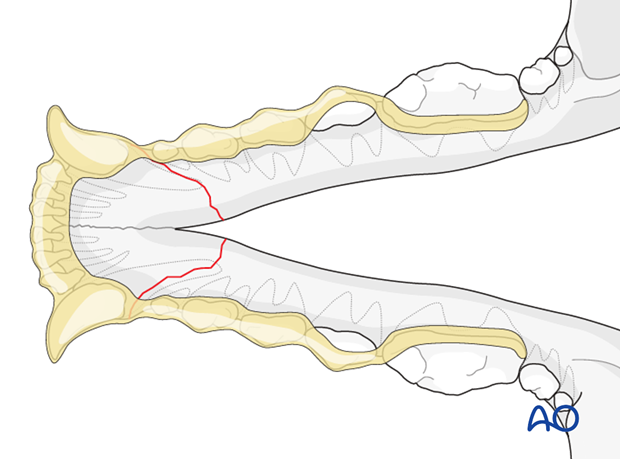 Dog mandible rostral bilateral simple fracture intraoral splinting