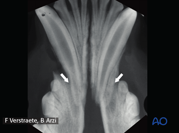 Radiograph of a dog mandible rostral bilateral fracture