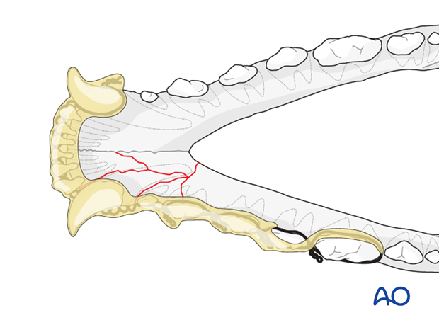 Dog mandible rostral unilateral comminuted fracture wire reinforced intraoral splinting