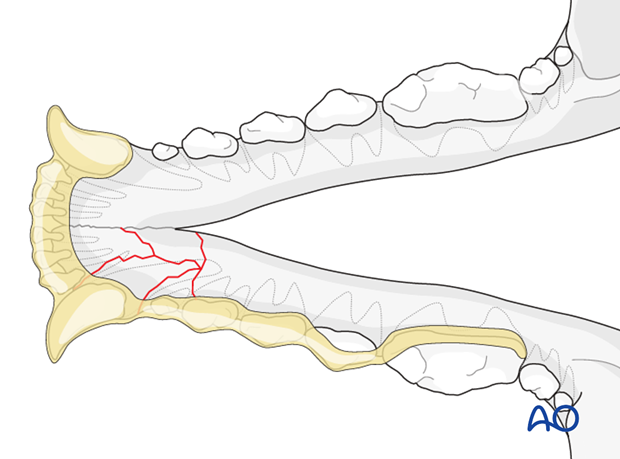 Dog mandible rostral unilateral comminuted fracture intraoral splinting