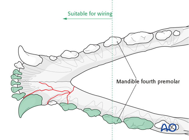 Dog mandible rostral unilateral comminuted fracture wiring zone