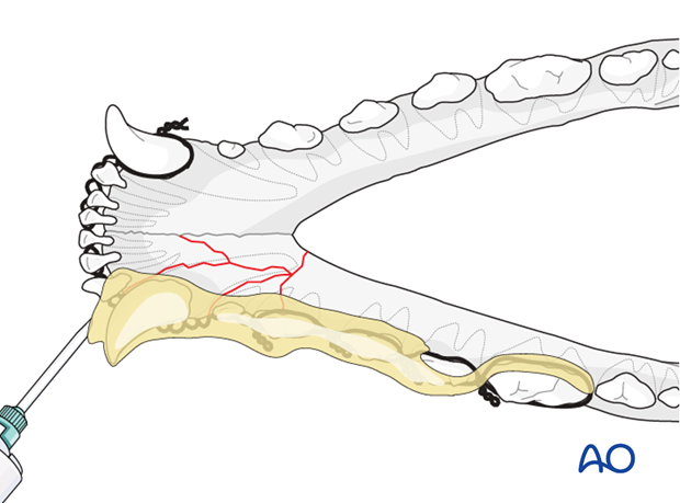 Dog mandible rostral unilateral comminuted fracture wire reinforced composite application