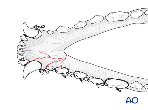Dog mandible rostral unilateral comminuted fracture modified Risdon interdental wire technique