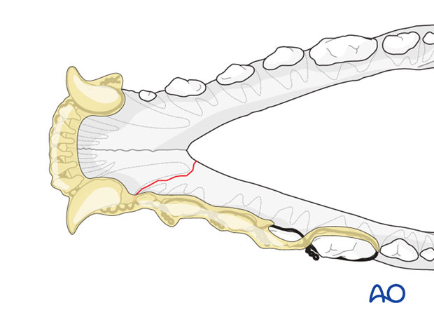 Dog mandible rostral unilateral simple fracture wire reinforced intraoral splinting