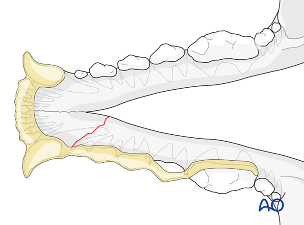 Dog mandible rostral unilateral simple fracture intraoral splinting