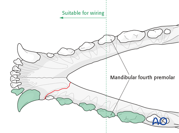 Dog mandible rostral unilateral simple fracture wiring zone