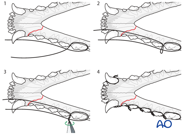 Dog mandible rostral unilateral simple fracture Stout loop interdental wire technique