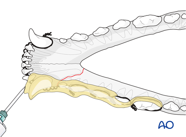 Dog mandible rostral unilateral simple fracture wire reinforced composite application