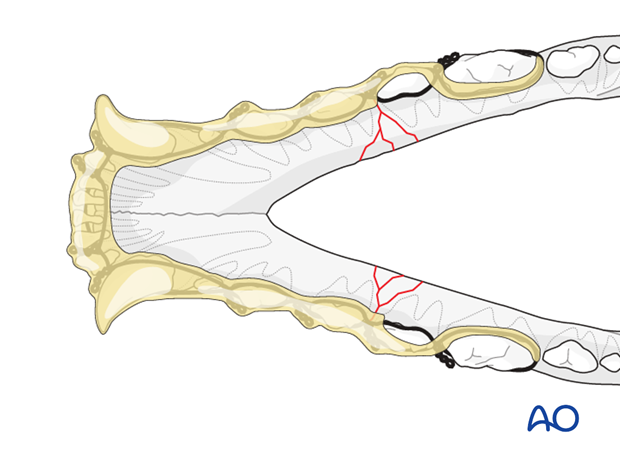 Dog mandible body bilateral comminuted fracture wire reinforced intraoral splinting