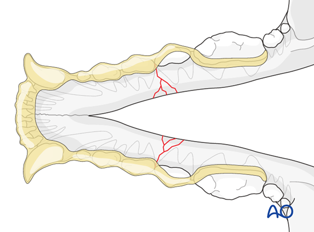 Dog mandible body bilateral comminuted fracture intraoral splinting