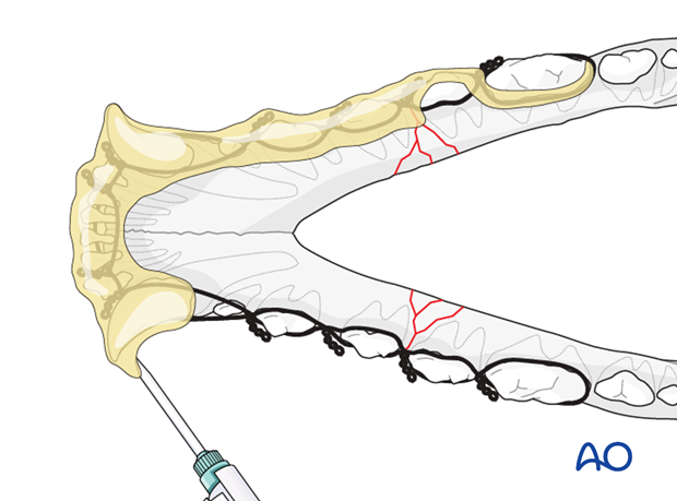 Dog mandible body bilateral comminuted fracture wire reinforced composite application