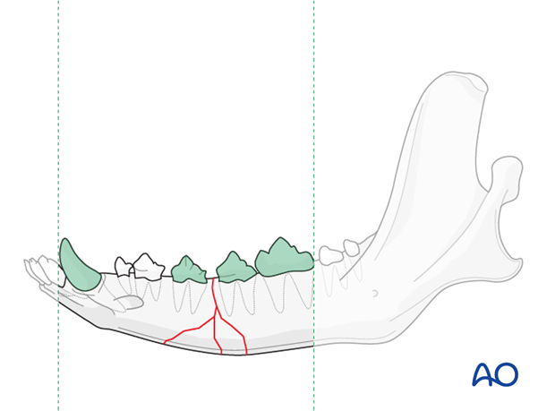 Dog mandible body unilateral comminuted fracture wiring zone