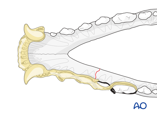 Dog mandible body unilateral simple fracture wire reinforced intraoral splinting