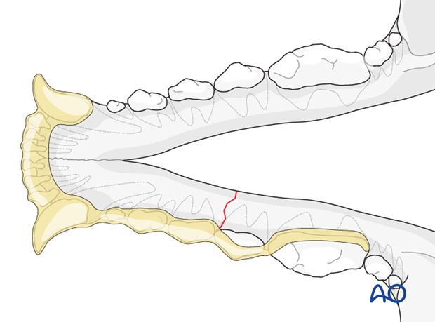 Dog mandible body unilateral simple fracture intraoral splinting
