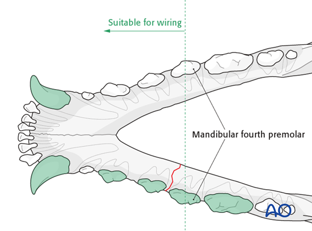Dog mandible body unilateral simple fracture wiring zone
