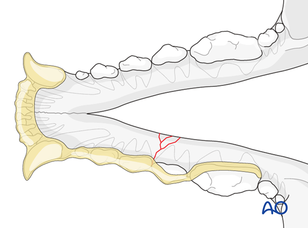 Dog mandible body unilateral comminuted fracture intraoral splinting