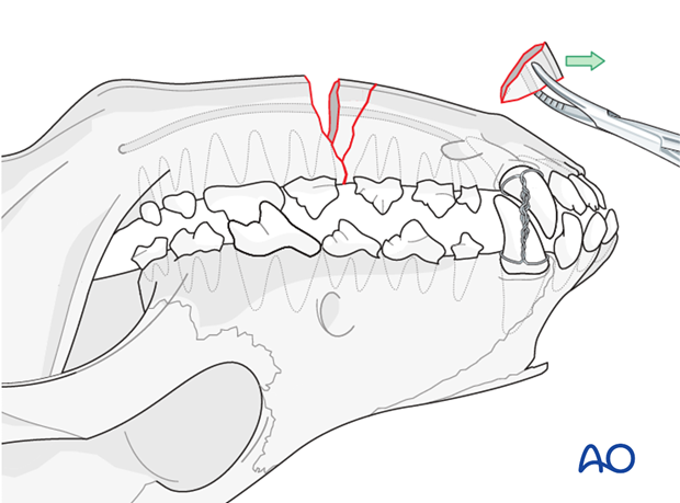 Dog mandible body unilateral simple fracture fragment removal
