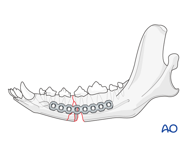 Dog mandible body unilateral comminuted fracture plate application