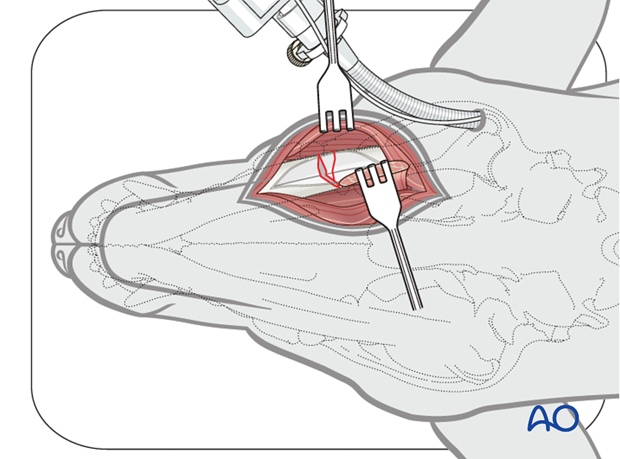 Dog mandible body unilateral comminuted fracture ventral approach