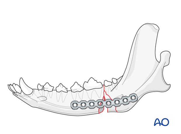 Dog mandible caudal unilateral comminuted fracture plate application