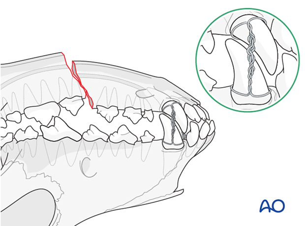 Dog mandible body unilateral simple fracture mouth locked in normal occlusion