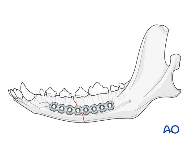 Dog mandible body unilateral simple fracture plate application