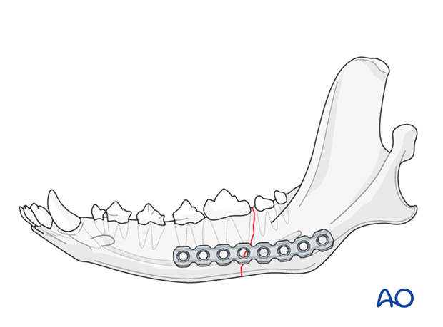 Dog mandible caudal unilateral simple fracture plate application
