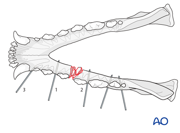 External skeletal fixator in a dog with mandible body unilateral comminuted fracture K-wire insertion order