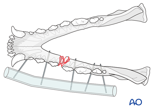 External skeletal fixator with tube in a dog with mandible body unilateral comminuted fracture