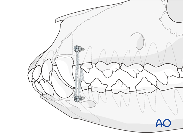 Elastic application on intermaxillary fixation (IMF) screws in a dog with caudal mandible fracture