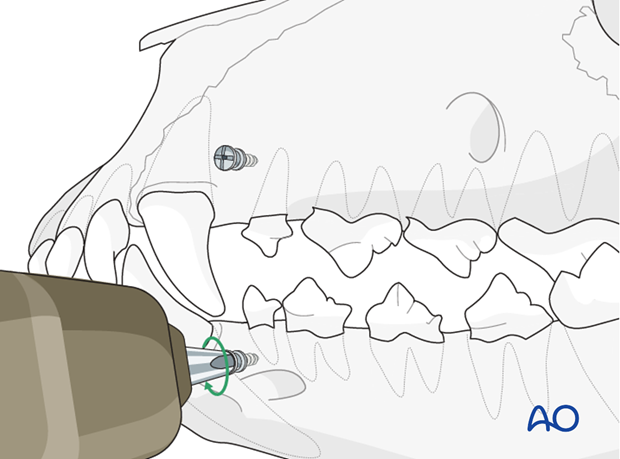 Intermaxillary fixation (IMF) screws insertion in a dog with caudal mandible fracture