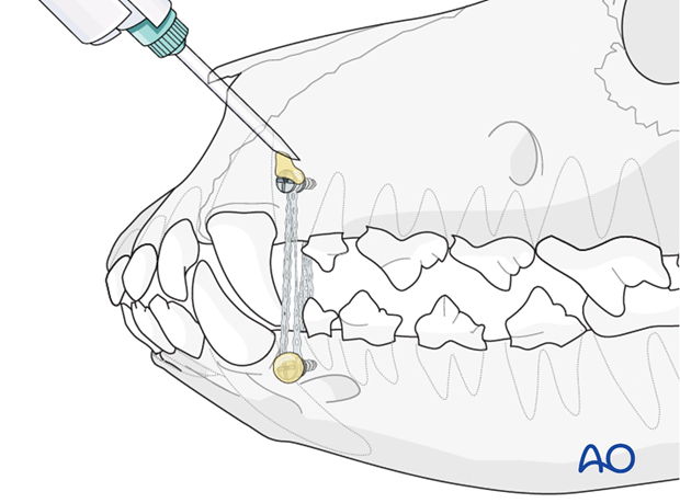 Dental composite application on intermaxillary fixation (IMF) screws in a dog with caudal mandible fracture