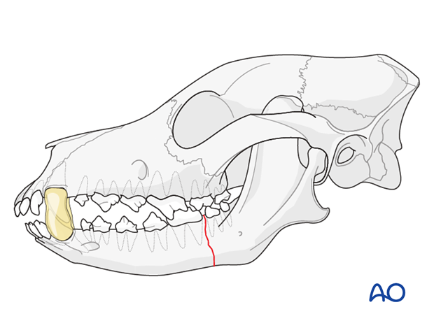 Maxillomandibular fixation (MMF) in a dog mandible with caudal unilateral simple fracture