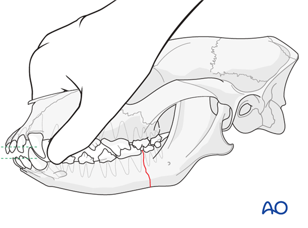Teeth of a dog with mandible caudal unilateral simple fracture placed in normal dental occlusion