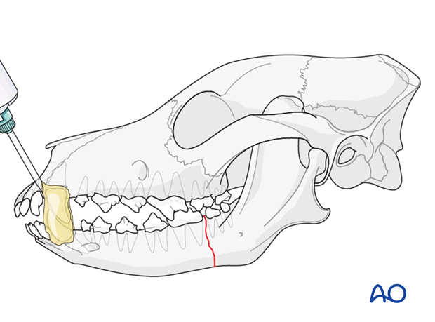 Composite placement on canine teeth of a dog with mandible caudal unilateral simple fracture