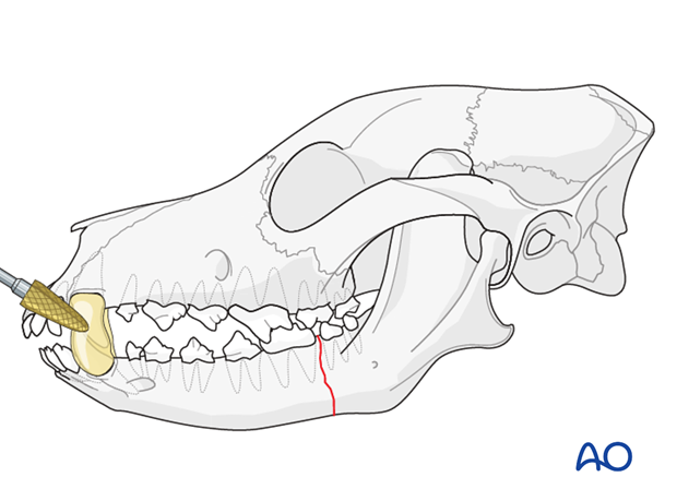 Composite smoothening on canine teeth of a dog with mandible caudal unilateral simple fracture