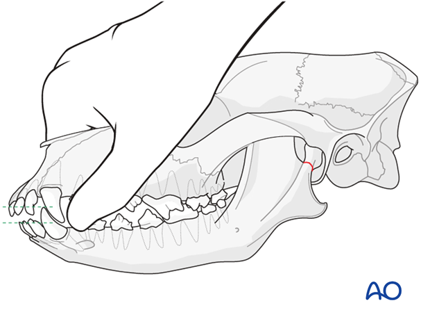 Teeth of a dog with mandible TMJ fracture placed in normal dental occlusion