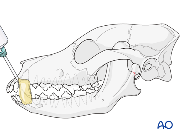 Composite placement on canine teeth of a dog with mandible TMJ fracture