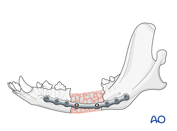 Plate fixation in a mandible defect nonunion in a dog
