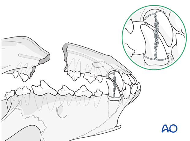 Mouth locked in normal occlusion in a dog mandible with a defect nonunion