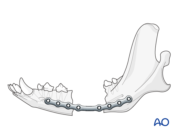 Dog mandible defect nonunion plate positioning