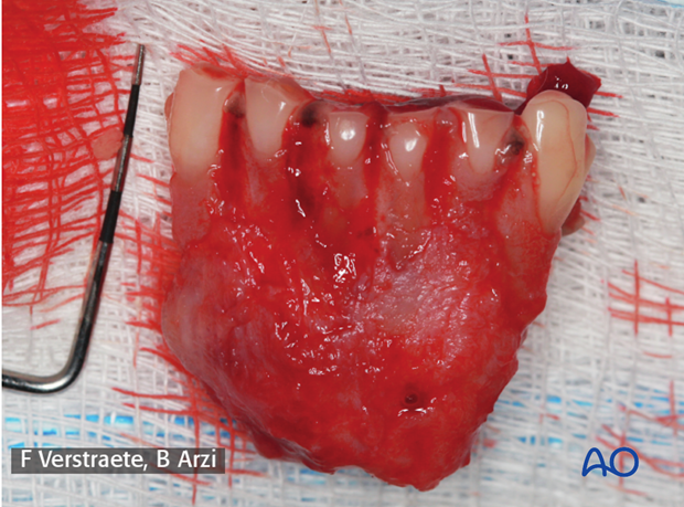 Case example of incisivectomy in a dog mandible