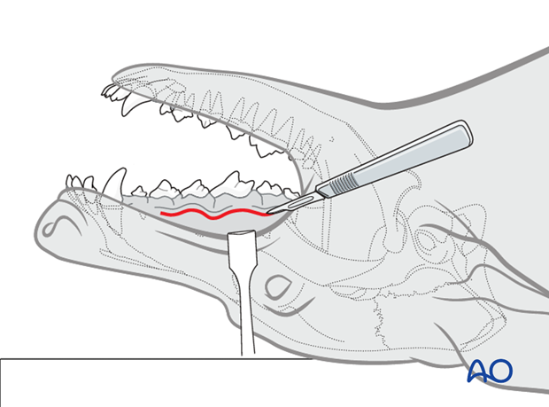 intraoral approach to the maxilla